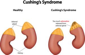 Cushings Disease